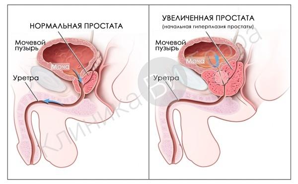 Бобровая железа от простатита