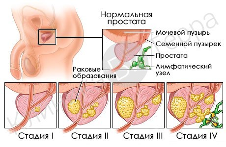Где и как болит простата