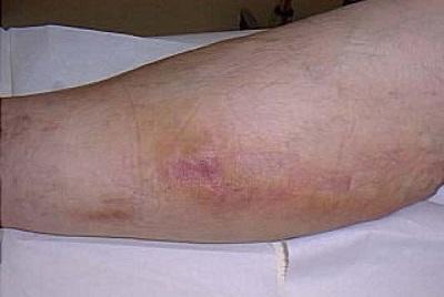 Варикоз ног при сахарном диабете