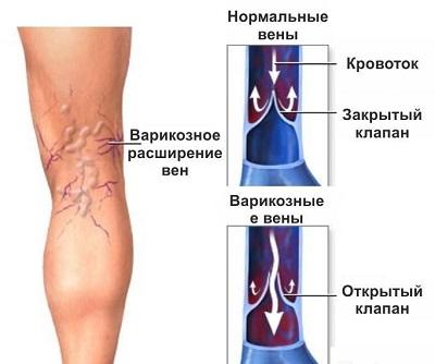 Лечение шейного остеохондроза снятие болей