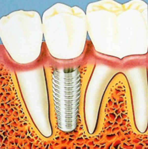 Имплантация зубов сыктывкар цена