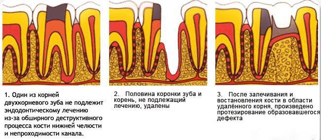 Двухкорневой зуб что это такое