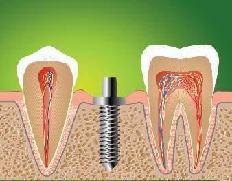 Послеоперационный период резекции корня зуба