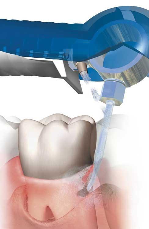 чистка зубов аппаратом вектор это белый