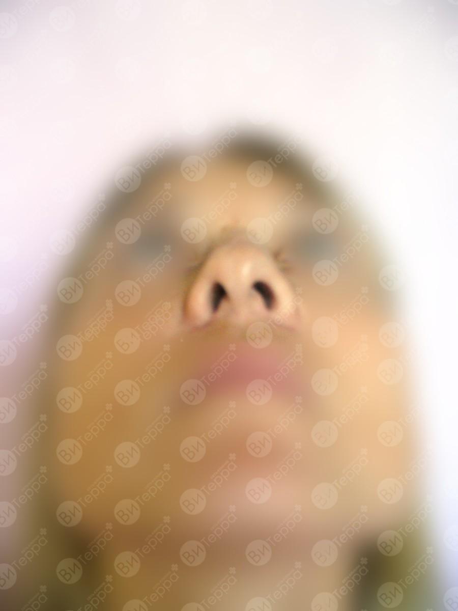 Коррекция хрящей носа без операции