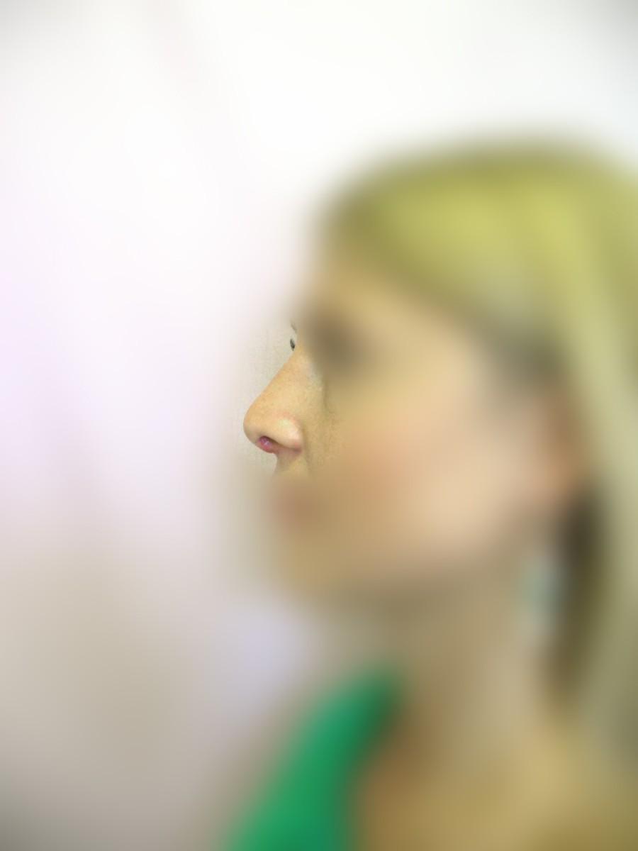 Что делать если появилась горбинка на носу