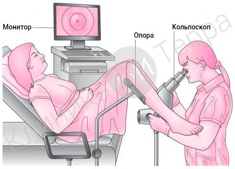 Видеокольпоскопия