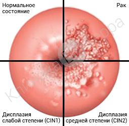 Маринованные грибы болезни