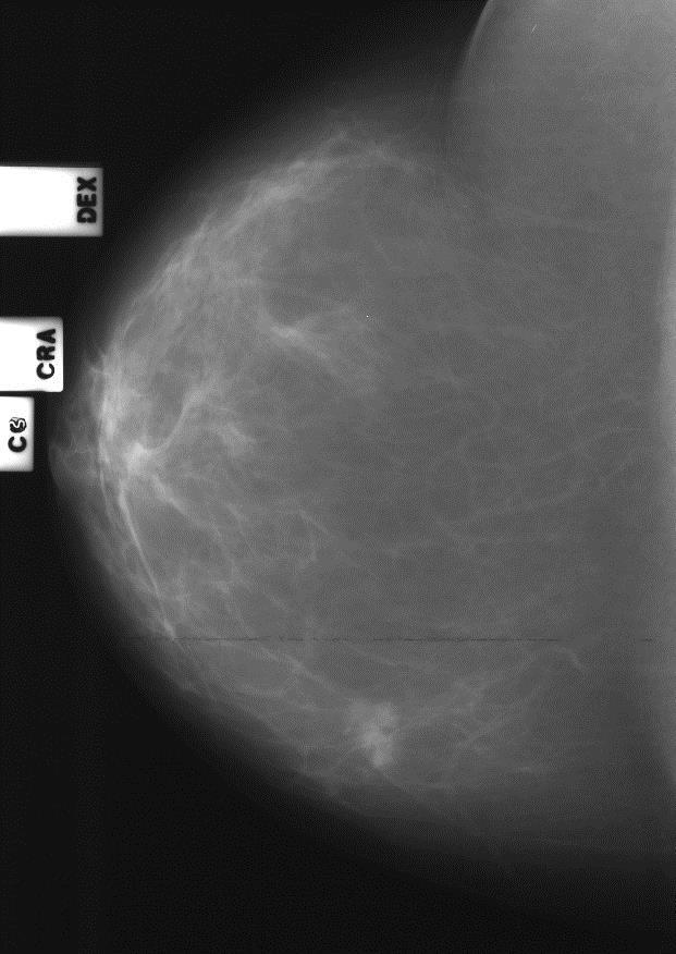 Злокачественное образование правой молочной железы (Bi-Rads 5)