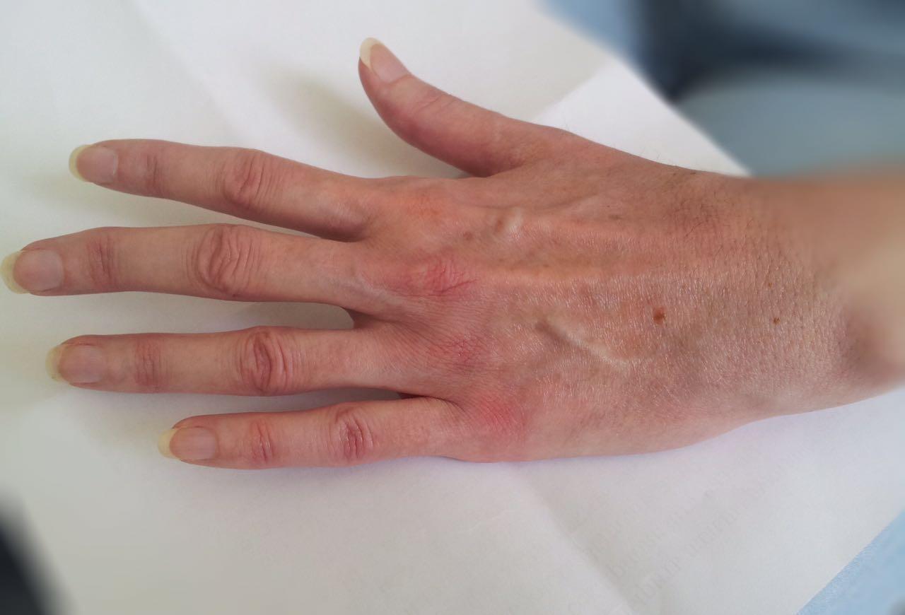 Ревматоидный артрит, серопозитивный полиартрит, очень ранняя ...