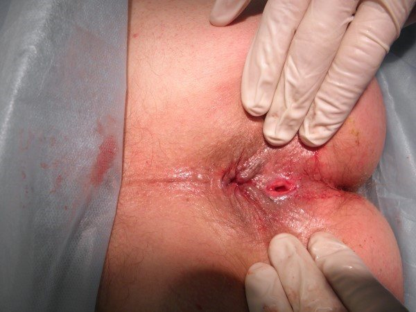 Операция геморроя тверь